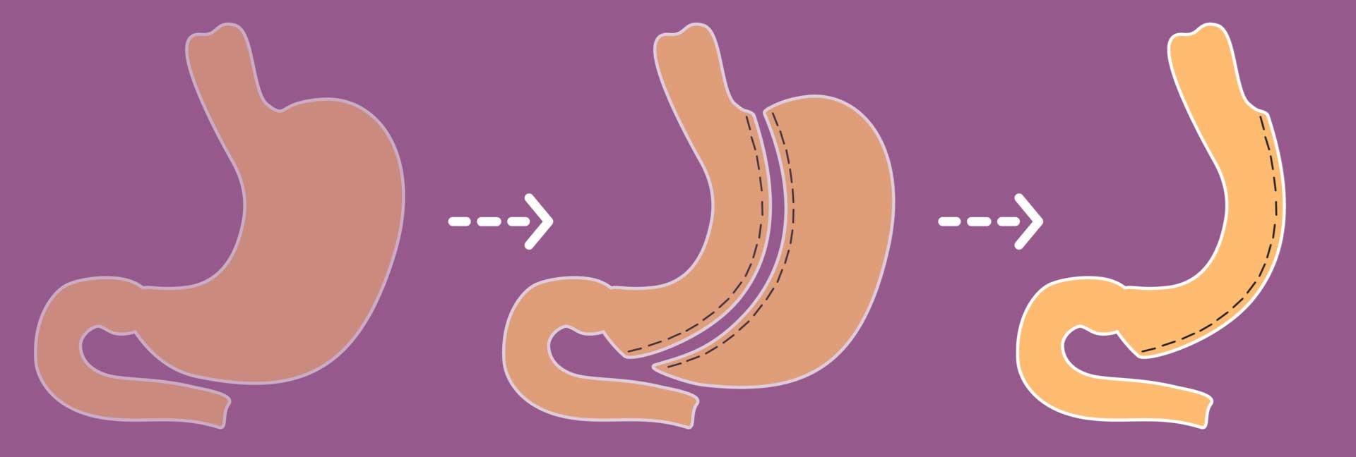 روده کوچک نقش اصلی در فرآیند هضم و جذب غذا بازی می کند