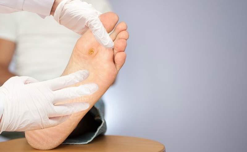 مراکز درمان زخم پای دیابتی