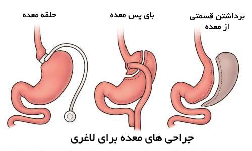شیوه های عمل جراحی برای رفع مشکلات چاقی