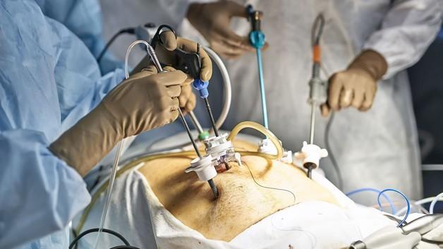 آیا خطر مرگ در عمل اسلیو معده وجود دارد؟
