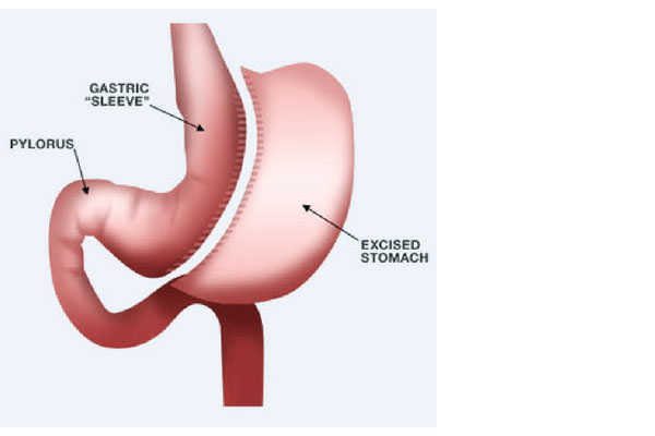 آیا امکان بازگشت وزن بعد از عمل اسلیو در بیمارستان نجمیه وجود دارد؟