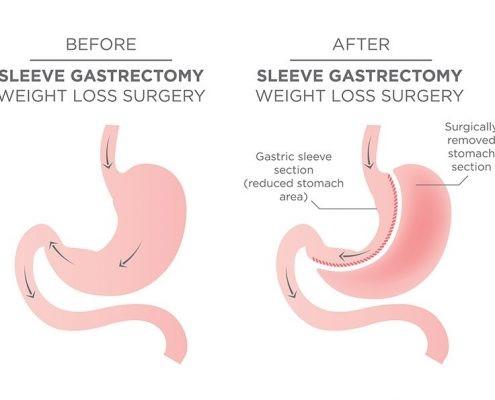 به نظر شما تاثیر تحرک بیشتر در زمان پس از جراحی معده چگونه است: