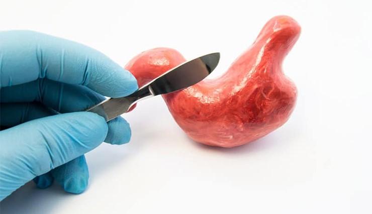 بهترین پزشک برای انجام عمل جراحی اسلیو معده چه کسی می باشد و چگونه می توان جراح ماهری را برای این عمل پیدا کرد؟
