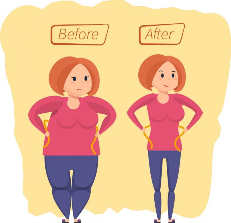چشم انداز بلند مدت در جراحی چاقی لاپاراسکوپی