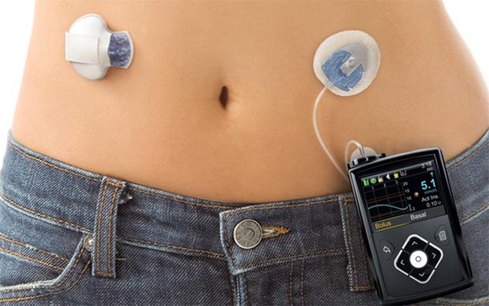 پمپ مستقیم این دسته از انسولین ها به صورت 24 ساعته وارد بدن می شود