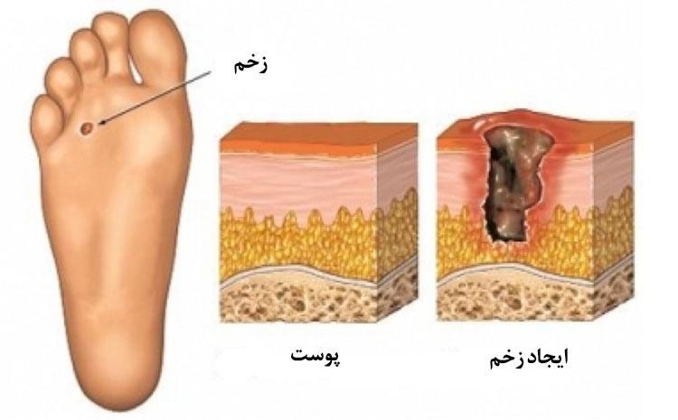 آیا در خصوص پیشگیری از ایجاد زخم های پای دیابتی اطلاعاتی دارید؟