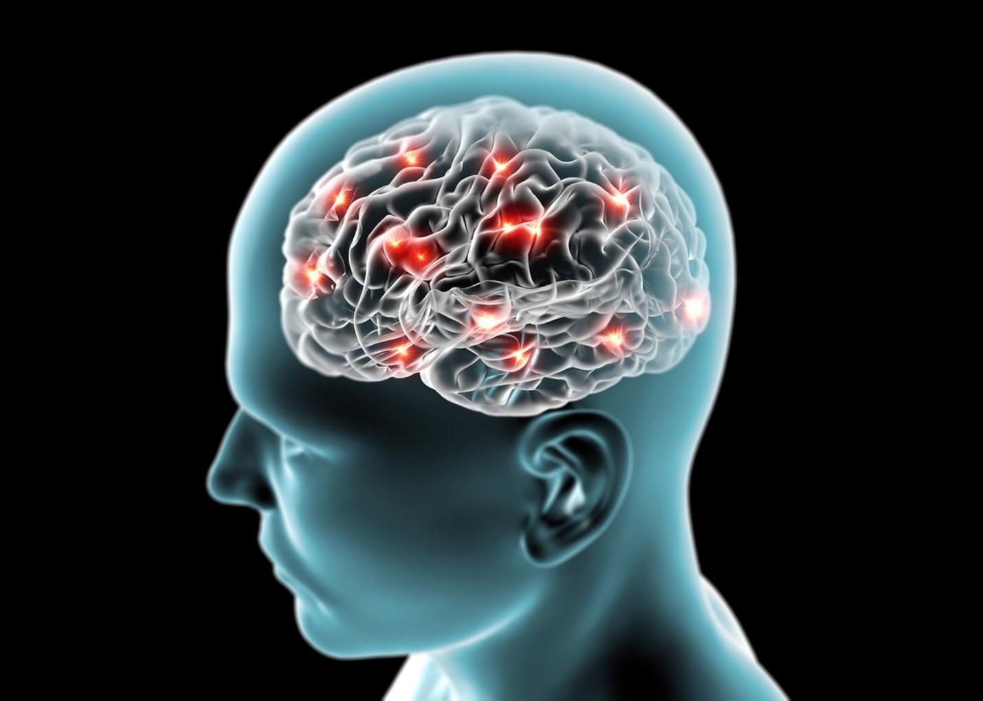 آلزایمر و قند خون