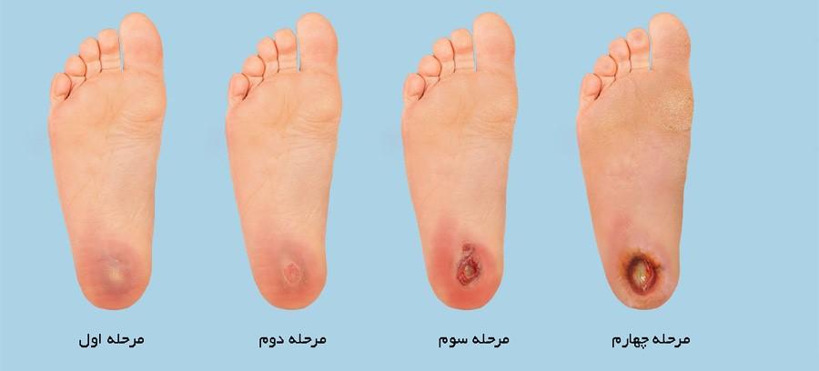 آیا با مهم ترین روش ها و شیوه ها برای درمان زخم های پای دیابتی آشنایی دارید؟