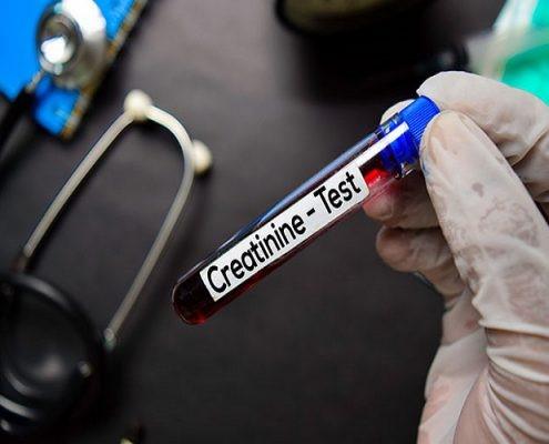 آیا در خصوص اندازه گیری میزان فیلتراسیون گلومرولی یاeGFR: که با مقدار کراتینین خون در ارتباط می باشد، اطلاعاتی دارید؟