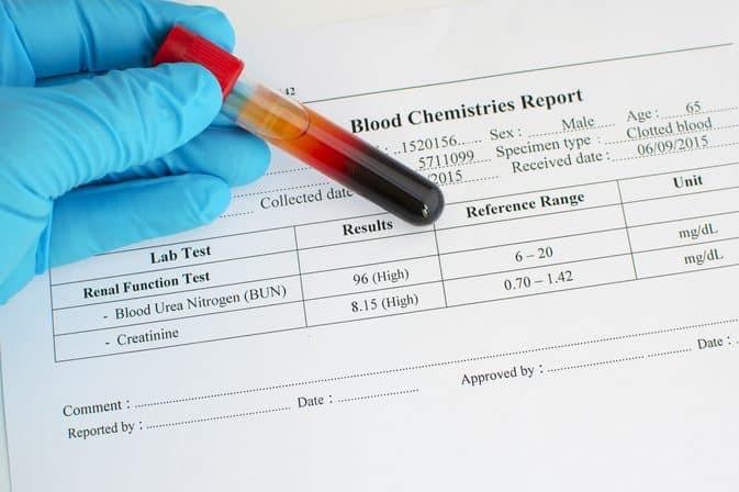 سوالات متداول درباره ی اوره ی خون که ممکن است، مطرح شود، کدام موارد می باشند؟