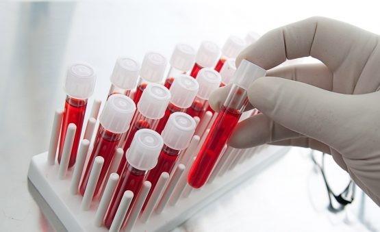 معنی creatinine در آزمایش خون