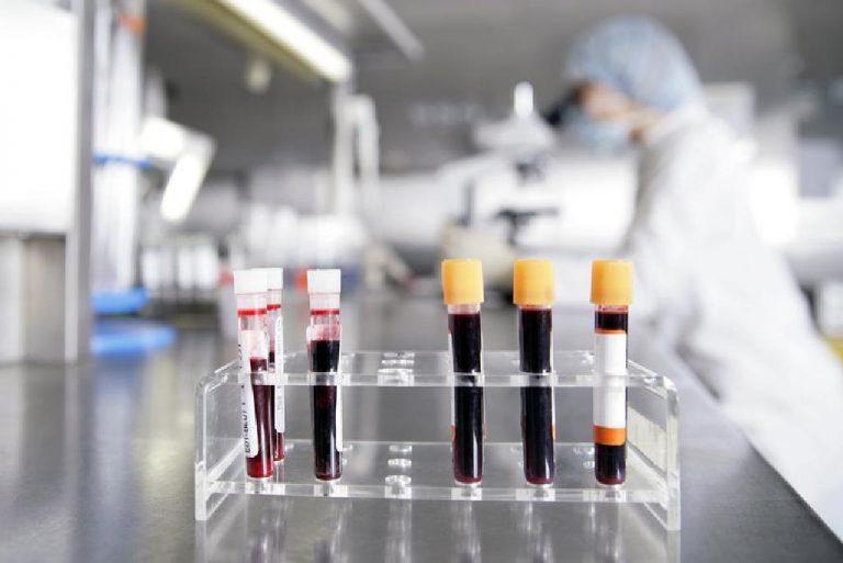 آزمایش قند خون دو ساعته یا 2hppدر آزمایش خون چیست؟
