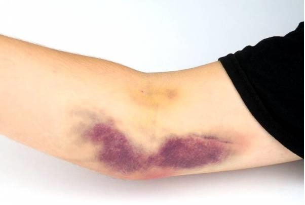 ممکن است برخی از افراد نسبت به خونگیری حساس باشند