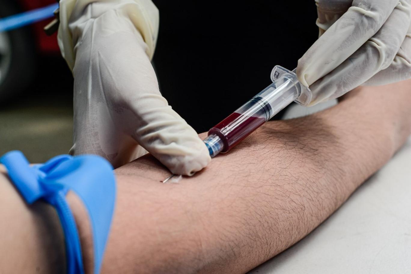 در سه حالت با دستگاه تست ، قند خون را بررسی می توان کرد