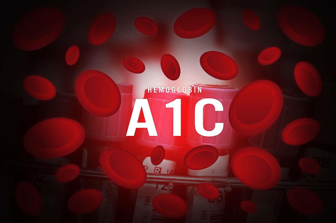 انتخاب بهترین پزشک برای آزمایش A1C