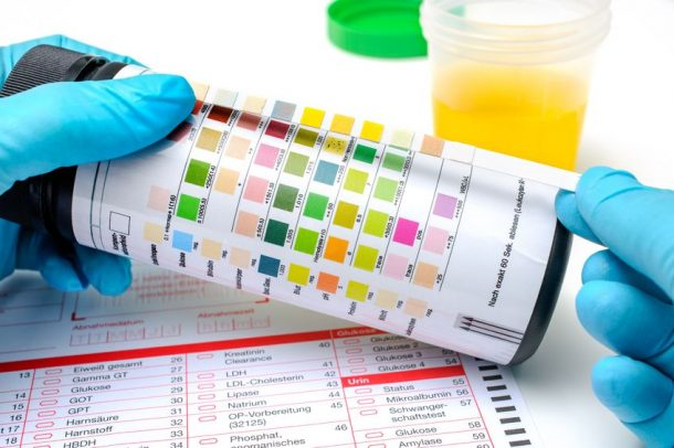 نحوه انجام egfr در آزمایش خون چیست