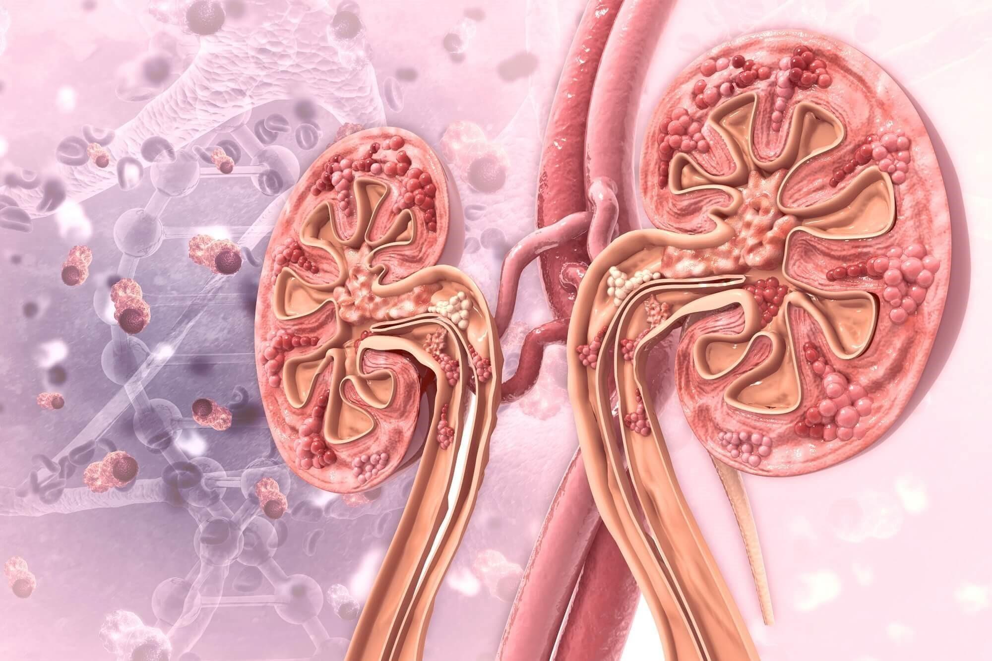 بیماری های کلیوی که منتهی به نارسایی مزمن کلیوی می شوند