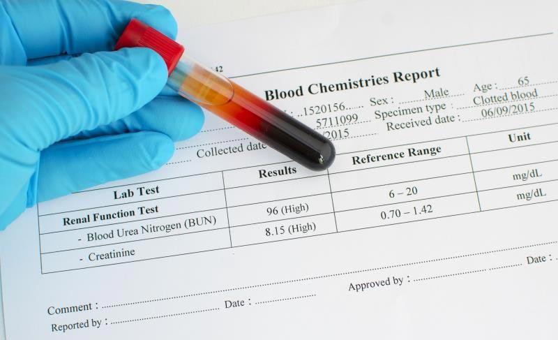 نتایج آزمایش هموگلوبین A1C