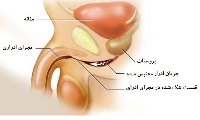 موارد زیر نیز می تواند سبب بالا رفتن میزان اوره در آزمایش خون نیتروژن اوره شوند: