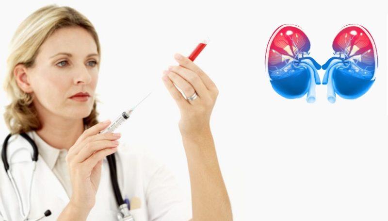 داروهای پایین آورنده اوره خون