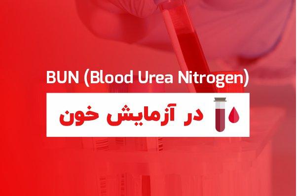 urea در آزمایش خون چیست
