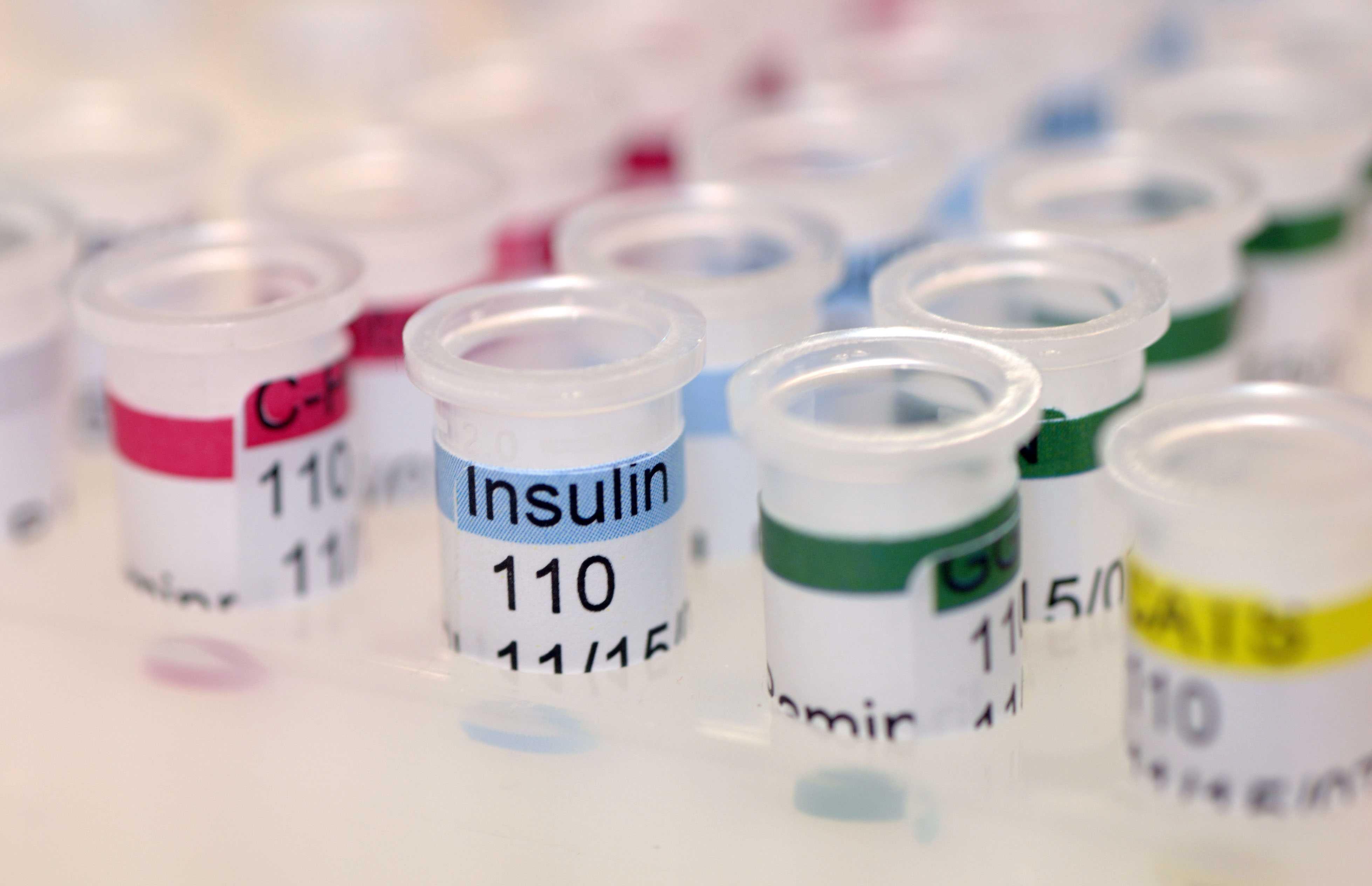 انسولین پایه یا بازال چیست؟