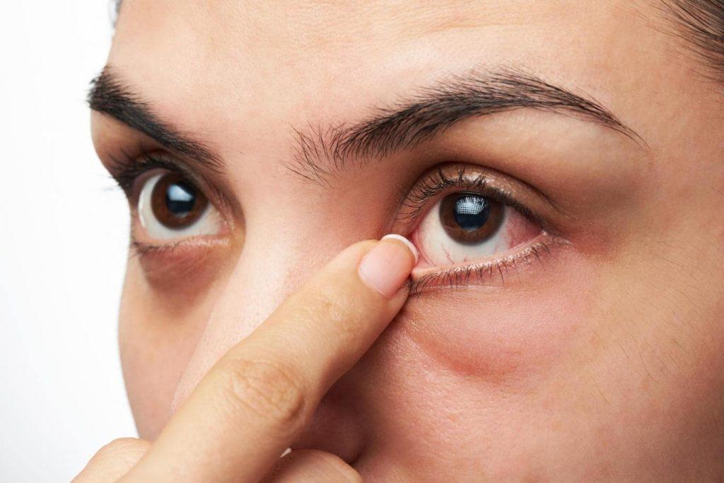 پزشک بعد از انجام تزریق در چشم دیابتی، چشم فرد را مورد پانسمان قرار می دهد