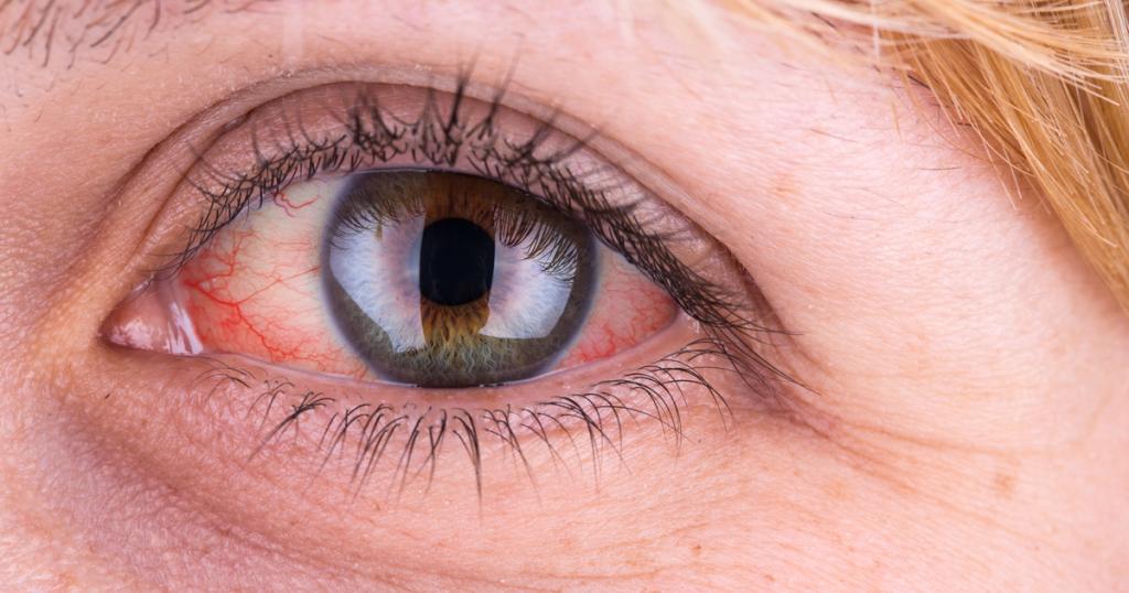 تزریق در چشم دیابتی