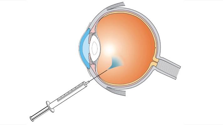 آیا با مقهوم تزریق در داخل چشم آشنایی دارید؟ آیا می دانید در این اقدام چه اتفاقی می افتد؟