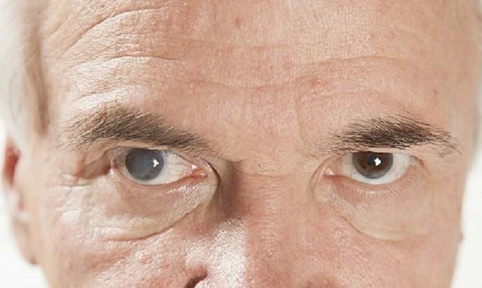 پزشک ها بعد از انجام تزریق در چشم دیابتی و دیگر انواع تزریق در چشم قطره های آنتی بیوتیک را تجویز می نمایند