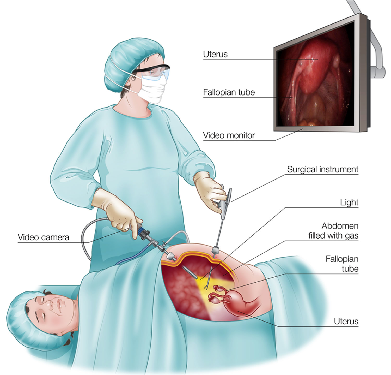 آیا همه جراحیها از طریق لاپاراسکوپی امکانپذیر میباشد؟