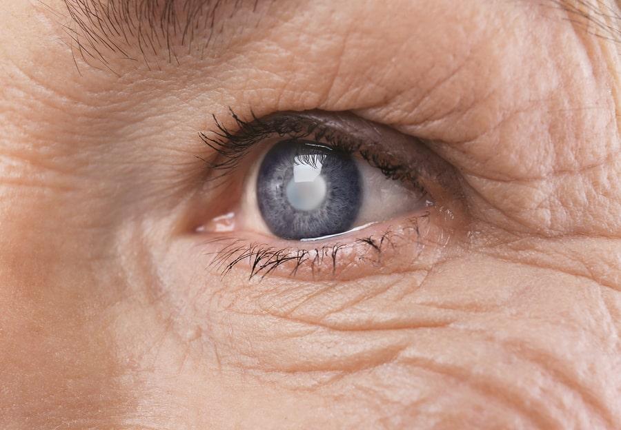آیا در زمینه ی افرادی که به تزریق در چشم نیازمند می باشند، اطلاعاتی دارید؟