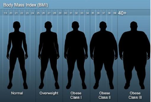 چاقی نوع چهارم