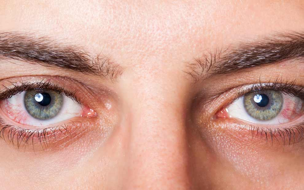 آیا با مهم ترین علامت های مربوط به چشم دیابتی آشنایی دارید؟