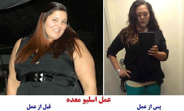 اضافه وزن روانی و عصبی: