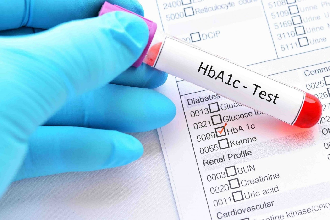 روش اندازه گیری HbA1c