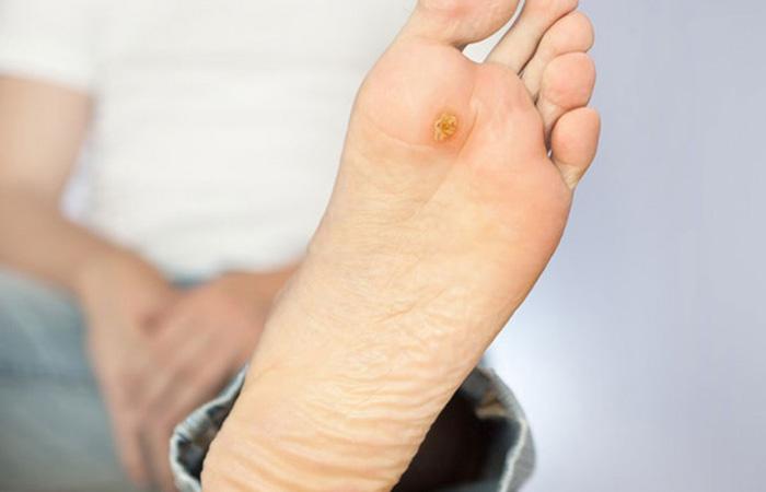 پماد آلفا زخم پای دیابتی