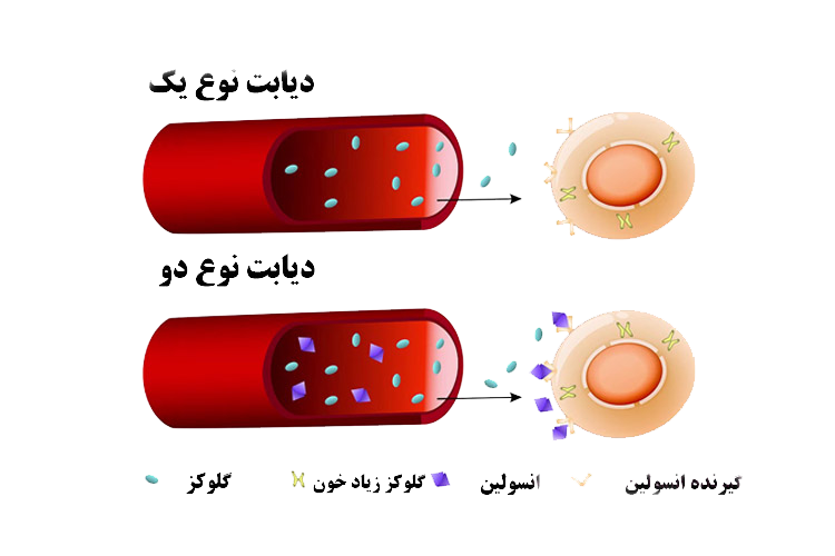 علائم و نشانههای دیگر برای شناخت دیابت نوع ۱