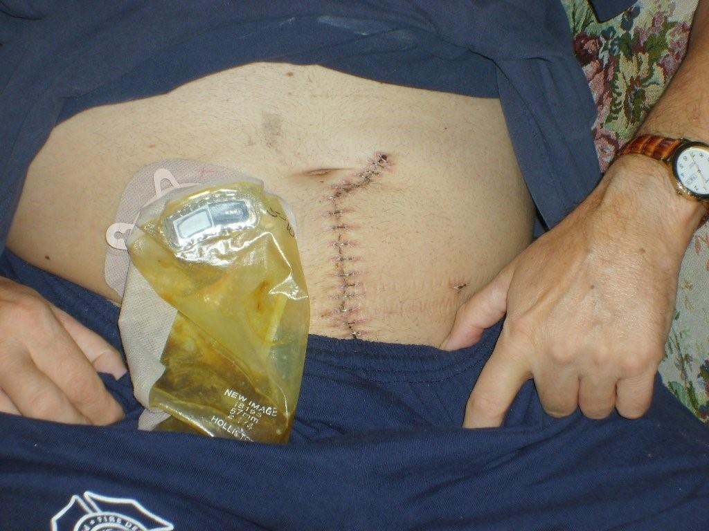 التیام و بهبود زخم های در شیوه ی جراحی لاپاراسکوپی بسیار سریع رخ می دهد