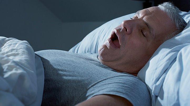 رابطه بین آپنه خواب و اضافه وزن
