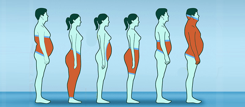چند نوع چاقی وجود دارد؟