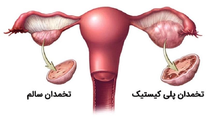 ارتباط چاقی و سندرم پلی کیستیک تخمدان