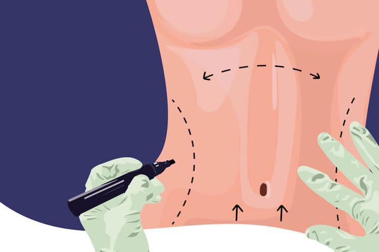 بارداری بعد از ابدومینوپلاستی چه شرایطی دارد؟
