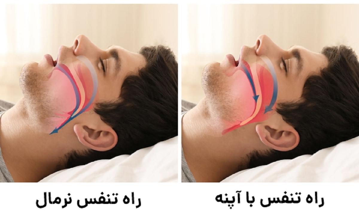 شکلگیری آپنه خواب و گرفتگی تنفس