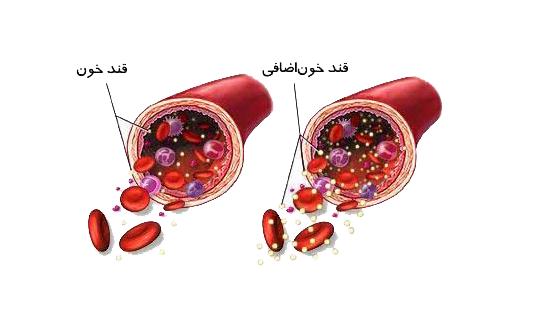 اگر هیچگونه درمانی برای دیابت ملیتوس نوع اول صورت نگیرد، چه اتفاقاتی در پیش خواهد بود؟