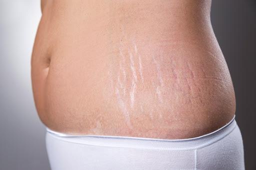 چاقی بر اثر شکلگیری بیماری کوشینگ