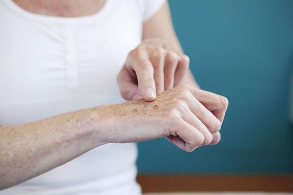 چه عارضههای پوستی در راستای وجود بیماری دیابت ملیتوس نوع ۱ وجود دارد؟