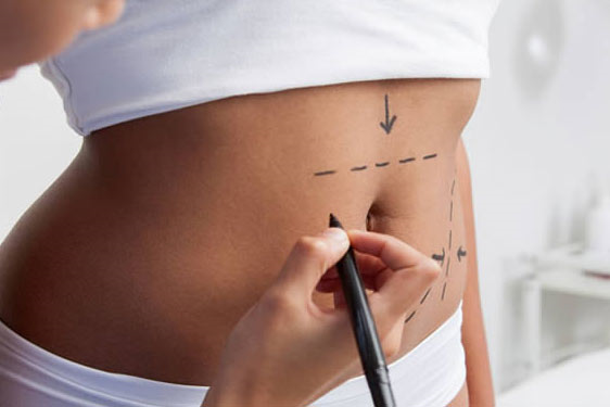 قبل از انجام جراحی ابدومینوپلاستی چه مشاوره هایی مورد نیاز است؟