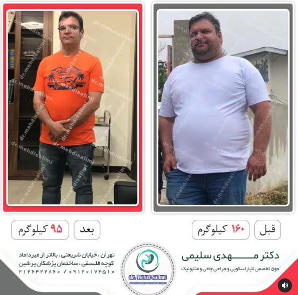 عکس قبل و بعد جراح چاقی