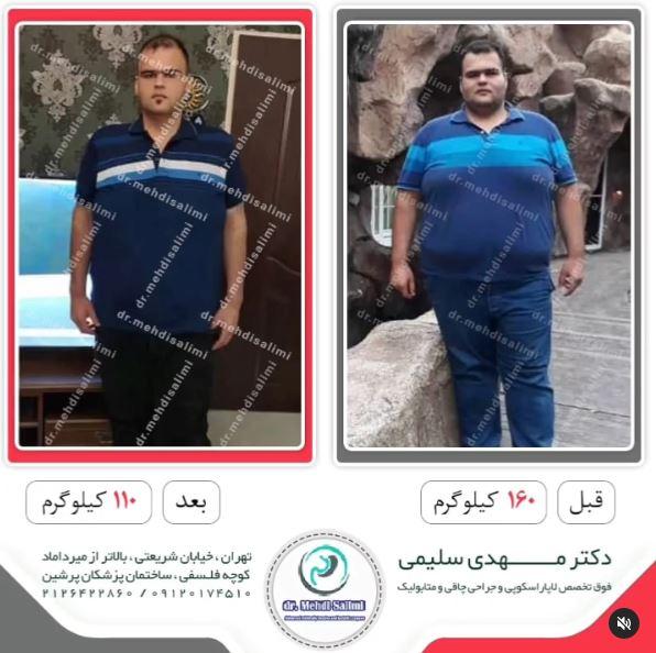 عکس قبل و بعد عمل چاقی دکتر سلیمی